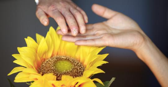MATEA PERKOVIĆ o JB pristupu fizikalnoj terapiji u oboljelih od sklerodermije